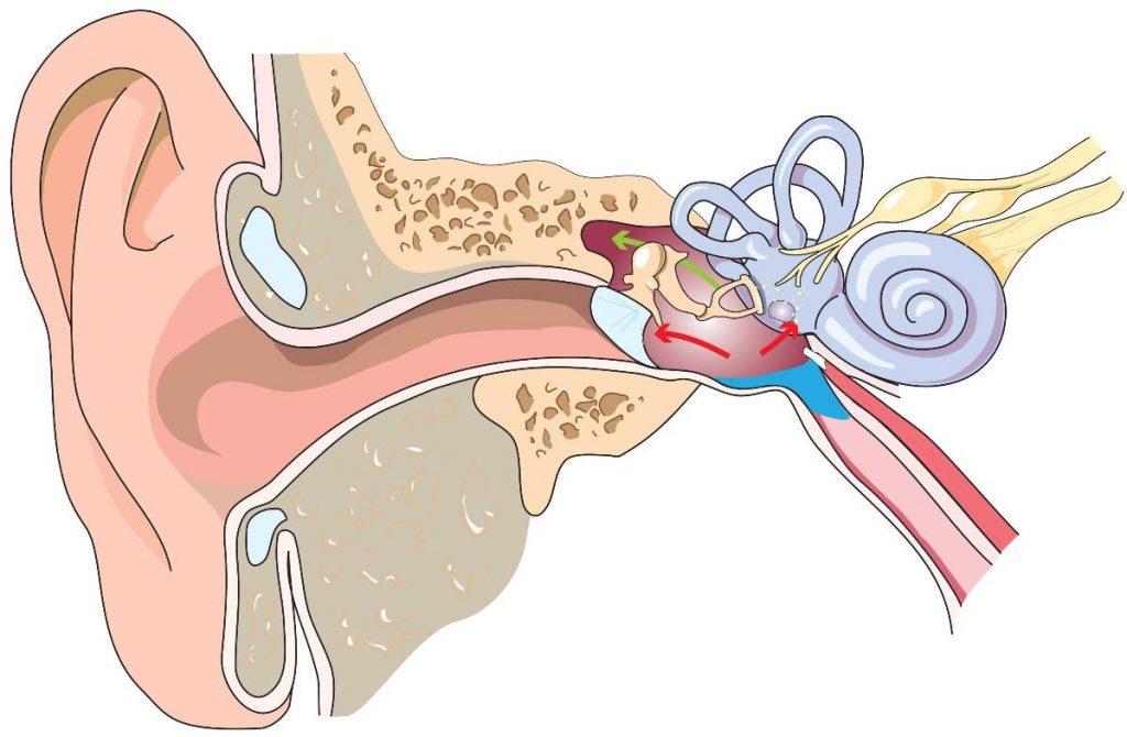 Gráfico de oído medio